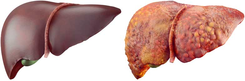 Comparison between a healthy liver and a liver with Cirrhosis.